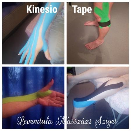 Kinesio Tape felhelyezés ára